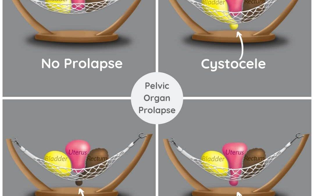 10 Ways to Manage Pelvic Organ Prolapse Symptoms During Exercise
