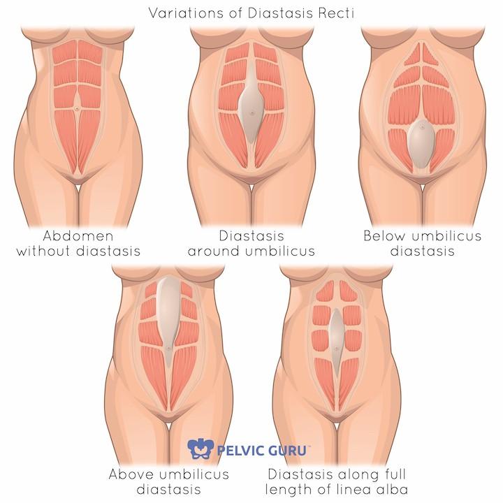 5 variations of diastasis recti
