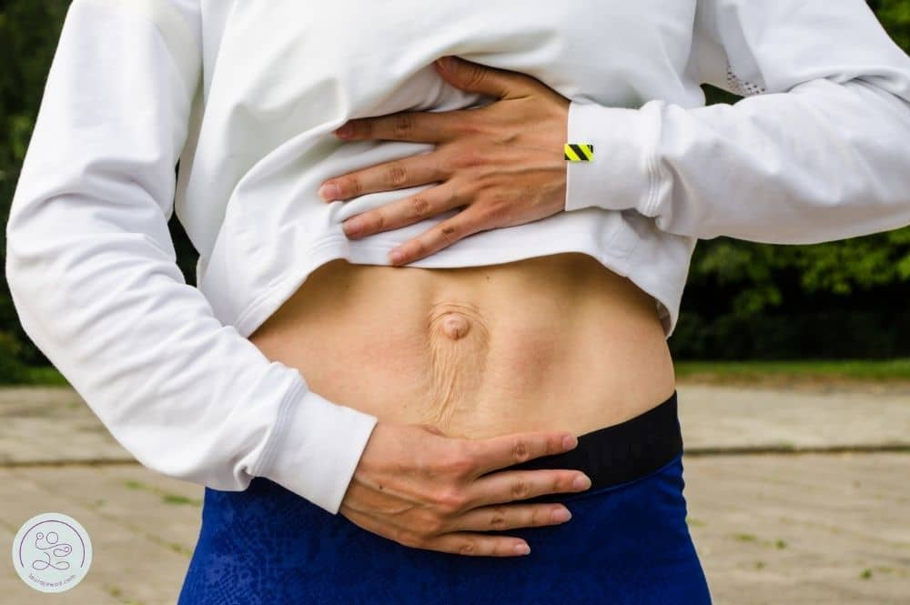 Image of a woman with diastasis recti pulling up her shirt to display her separated abdominal muscles.