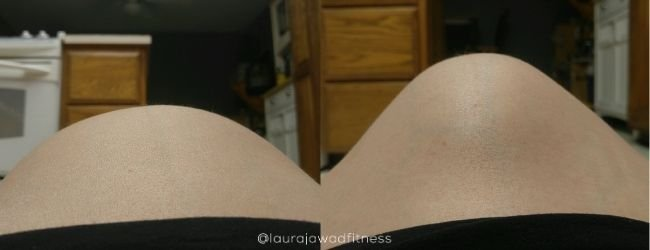 Image of pregnant belly at rest and coning under tension(